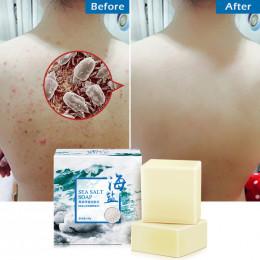 Sól morska mydło do czyszczenia usuwania pryszcz pory leczenie trądziku kozie mleko nawilżające do mycia twarzy mydło do pielęgn